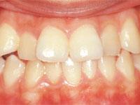 歯列矯正サンプル